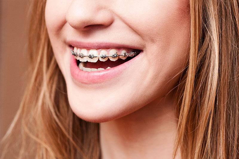 Orthodontics in Pasadena