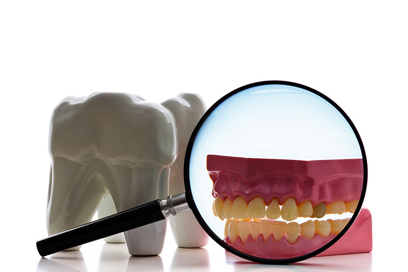 Root Canal in Pasadena