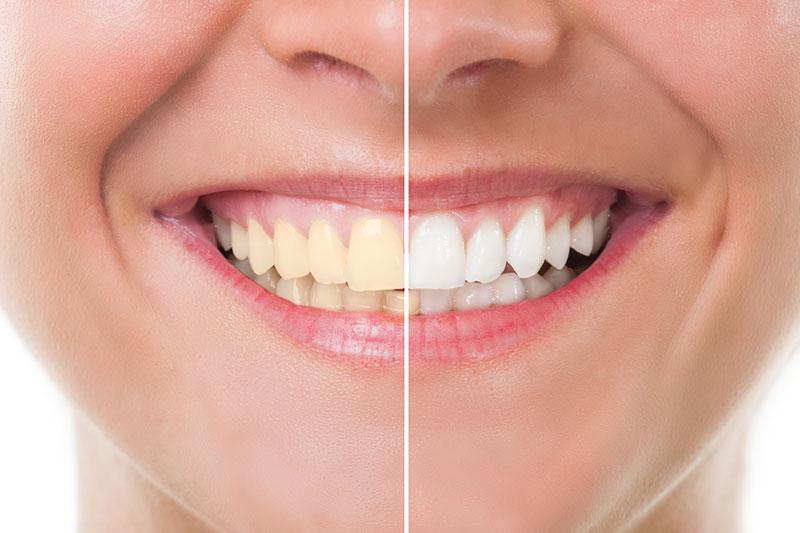 Teeth Whitening in Pasadena